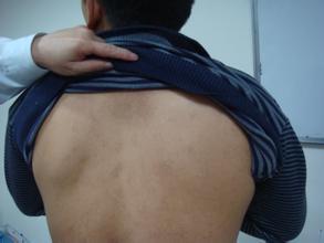 白癜风症状:男性患上白癜风的原因是什么